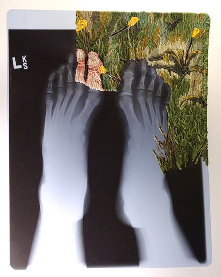 Из тёмных непонятных очертаний появляются пальцы ног