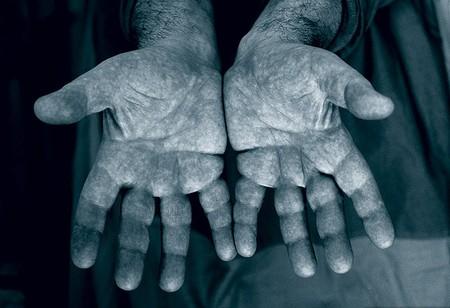 Руки патологоанатома