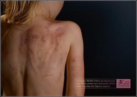 Детское насилие — тема интернациональная