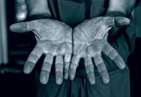 Руки кардиохирурга