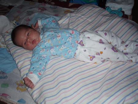 Атопический дерматит у новорожденного — фото 4
