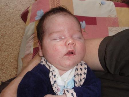 Атопический дерматит у новорожденного — фото 3