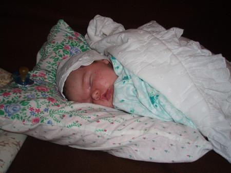 Атопический дерматит у новорожденного — фото 6